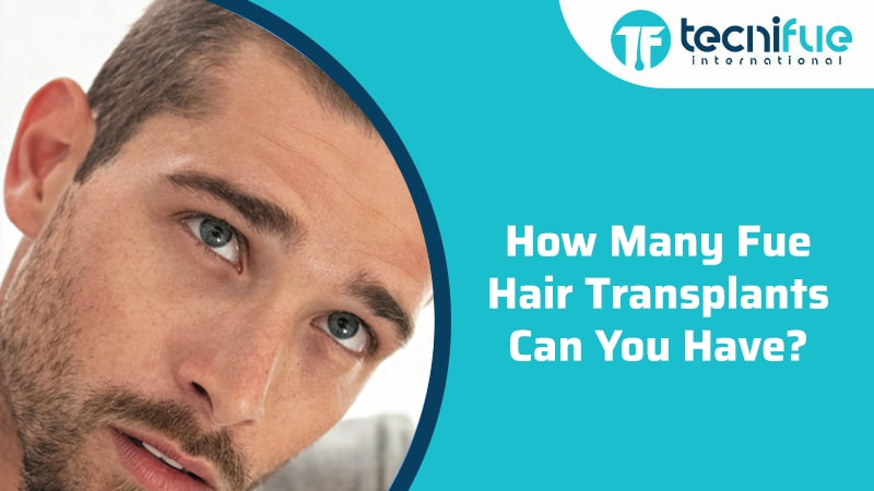 How Many FUE Hair Transplants Can You Have?