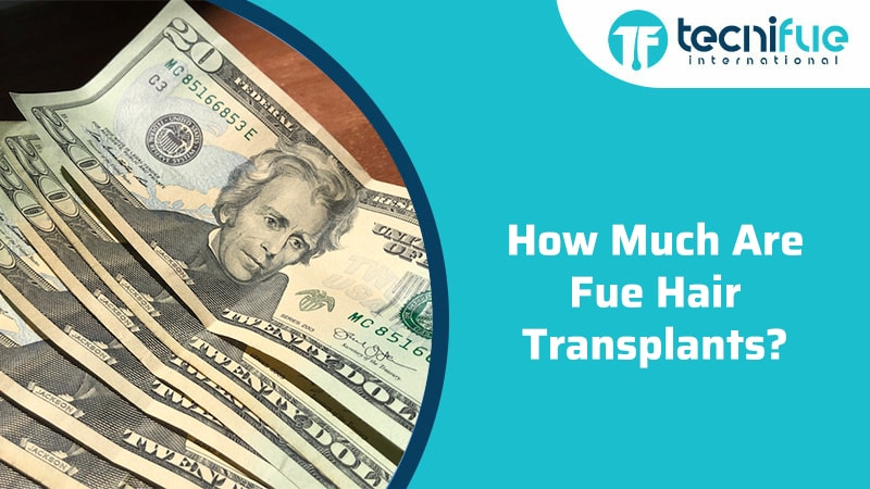 How Much Are FUE Hair Transplants?, How Much Are FUE Hair Transplants?