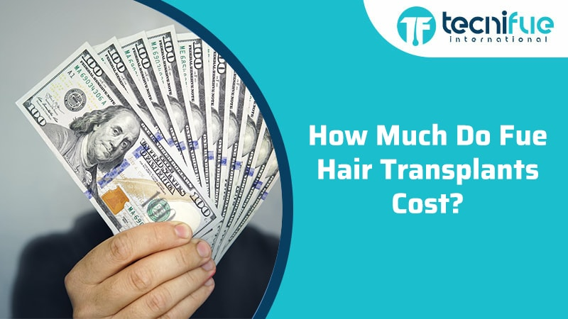 How Much Do Fue Hair Transplants Cost?