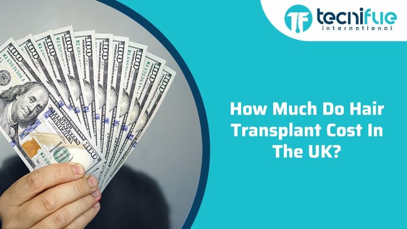 How Much Do Hair Transplant Cost in the UK?, How Much Do Hair Transplant Cost in the UK?
