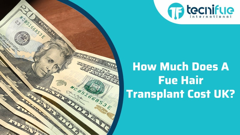 How Much Does a Fue Hair Transplant Cost UK?