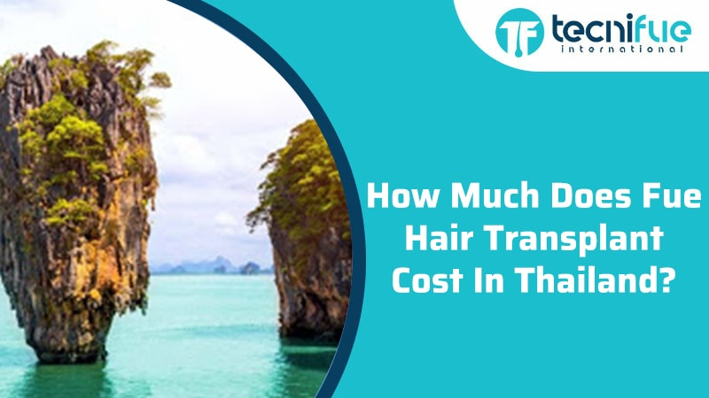 How Much Does Fue Hair Transplant Cost In Thailand?