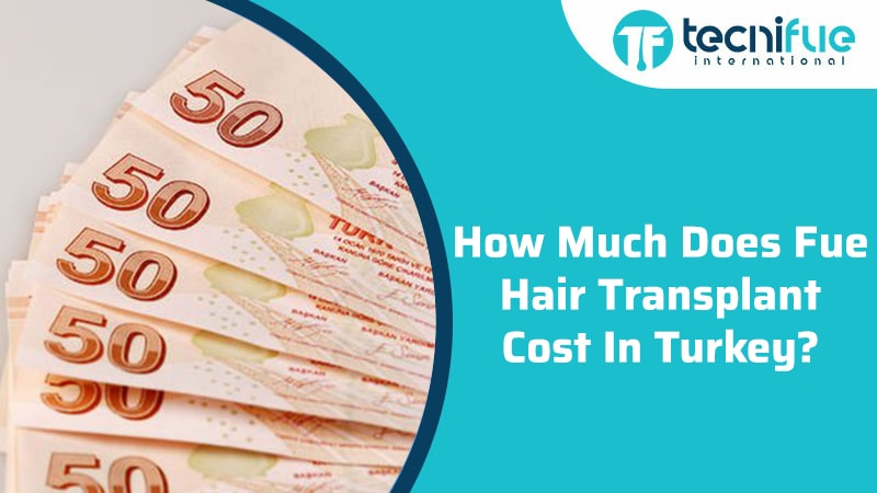 How Much Does Fue Hair Transplant Cost in Turkey?