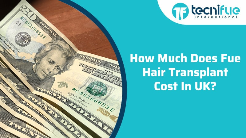 How Much Does Fue Hair Transplant Cost In UK?