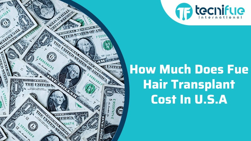 How Much Does Fue Hair Transplant Cost In USA?