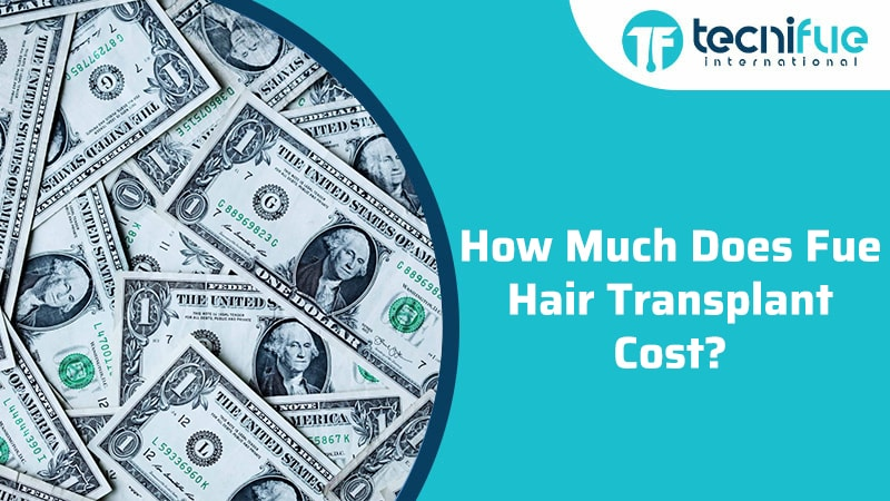 How Much Does Fue Hair Transplant Cost?, How Much Does Fue Hair Transplant Cost?