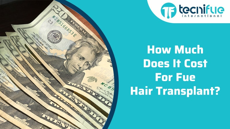 How Much Does It Cost For Fue Hair Transplant?