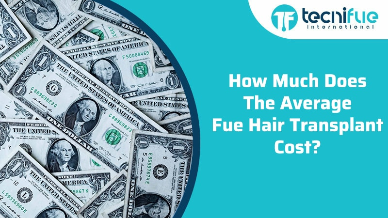 How Much Does The Average FUE Hair Transplant Cost?