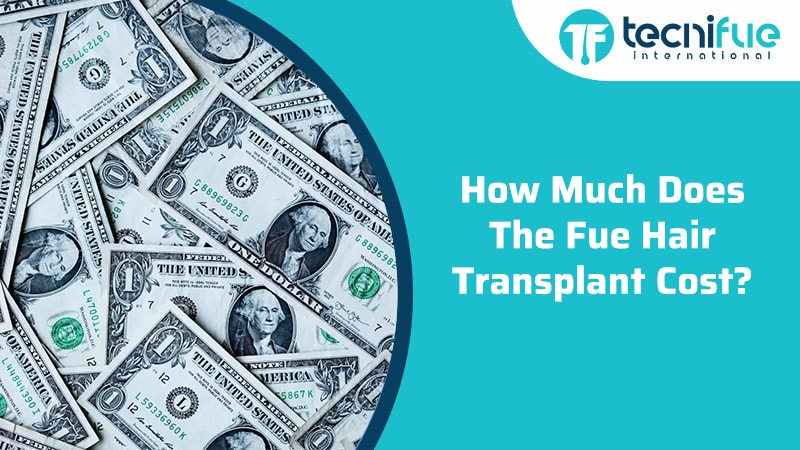 How Much Does The FUE Hair Transplant Cost?