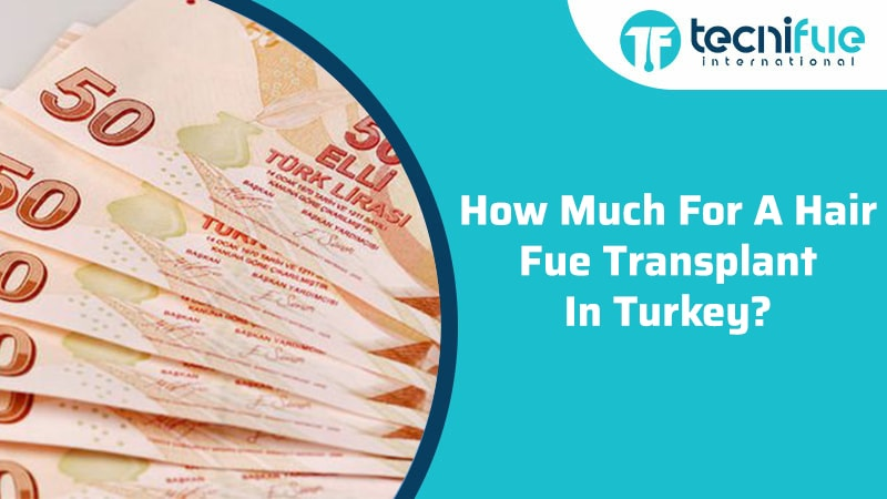How Much For A Hair FUE Transplant In Turkey?, How Much For A Hair FUE Transplant In Turkey?