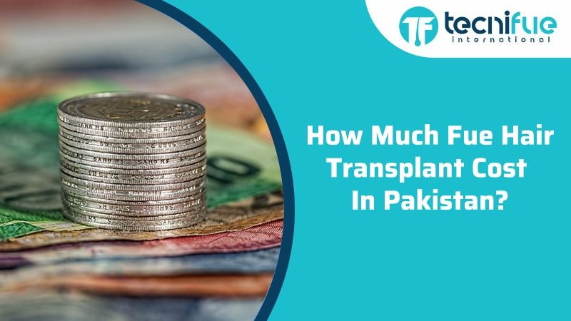 How Much FUE Hair Transplant Cost In Pakistan