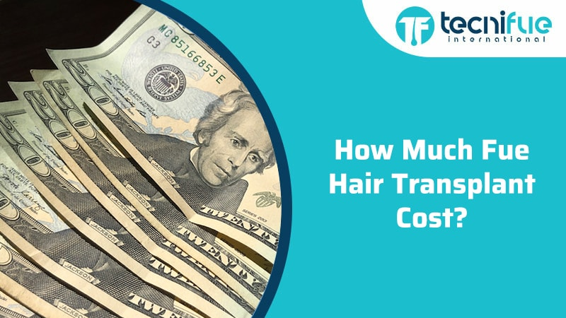 How Much Fue Hair Transplant Cost?, How Much Fue Hair Transplant Cost?