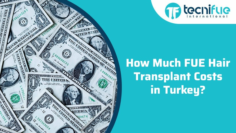 How Much FUE Hair Transplant Costs in Turkey?, How Much FUE Hair Transplant Costs in Turkey?