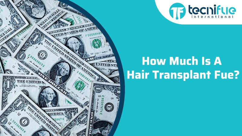How Much Is A Hair Transplant FUE?