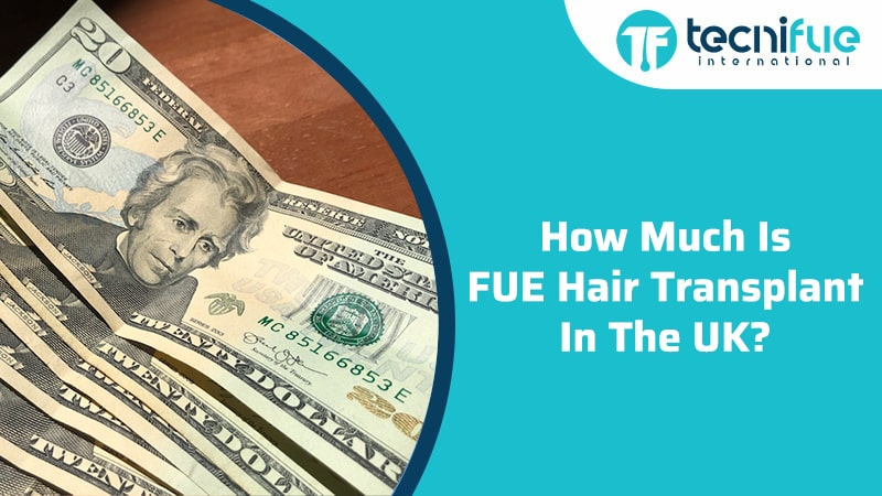 How Much Is FUE Hair Transplant In The UK?, How Much Is FUE Hair Transplant In The UK?