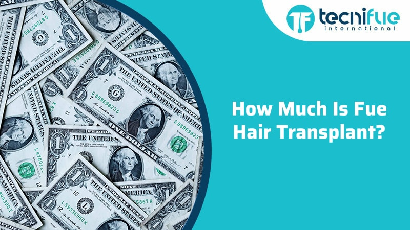 How Much Is Fue Hair Transplant?