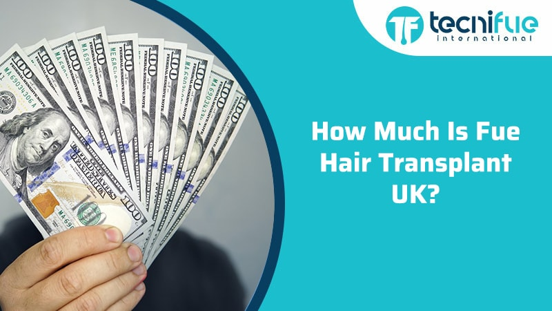 How Much Is FUE Hair Transplant UK?