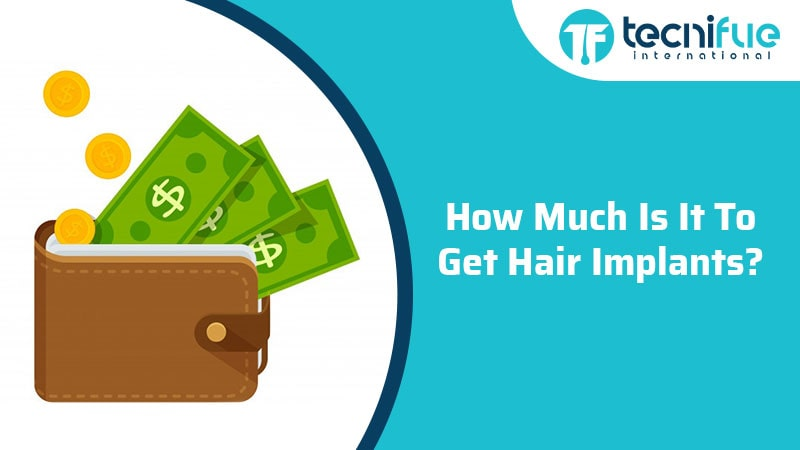 How Much Is It To Get Hair Implants?, How Much Is It To Get Hair Implants?