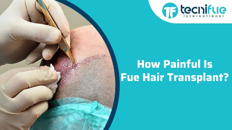 How Painful Is Fue Hair Transplant?, How Painful Is Fue Hair Transplant?