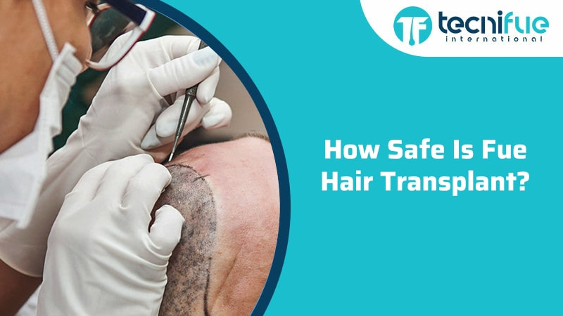 How Safe Is FUE Hair Transplant?, How Safe Is FUE Hair Transplant?