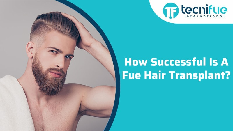 How Successful Is A FUE Hair Transplant?, How Successful Is A FUE Hair Transplant?