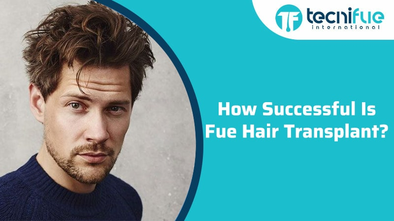 How Successful Is Fue Hair Transplant?