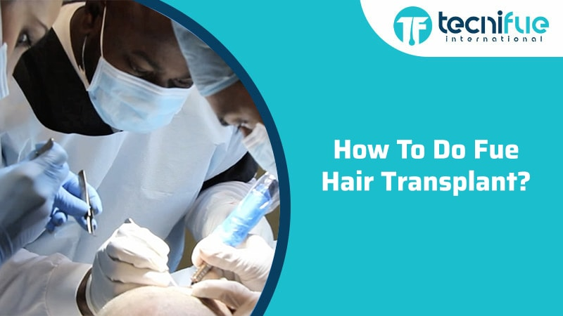 How To Do FUE Hair Transplant?