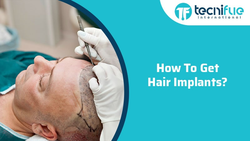 How To Get Hair Implants?