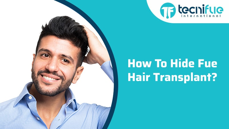 How To Hide Fue Hair Transplant?, How To Hide Fue Hair Transplant?