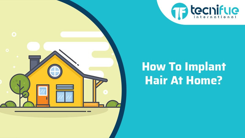 How To Implant Hair At Home?, How To Implant Hair At Home?