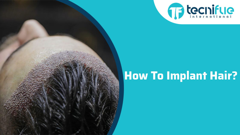 How To Implant Hair?