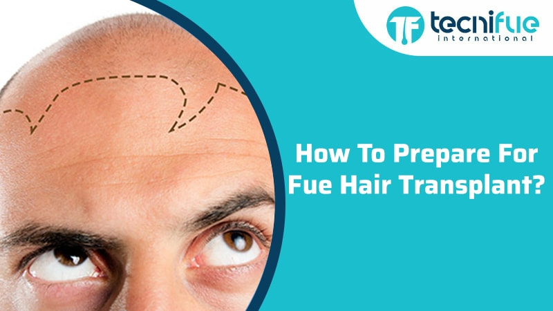 How To Prepare For FUE Hair Transplant?, How To Prepare For FUE Hair Transplant?