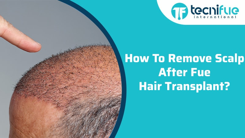 How To Remove Scalp After FUE Hair Transplant?
