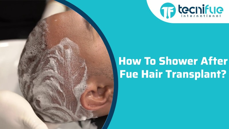 How To Shower After FUE Hair Transplant?
