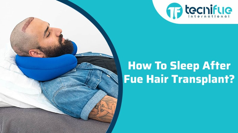 How To Sleep After FUE Hair Transplant?