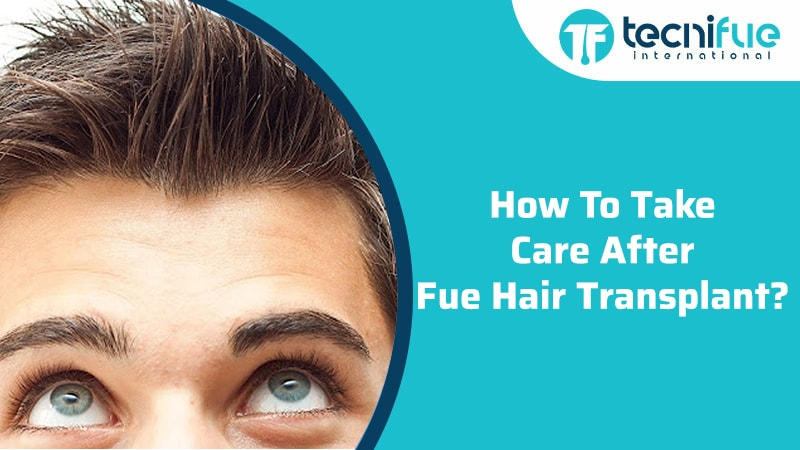How To Take Care After FUE Hair Transplant?