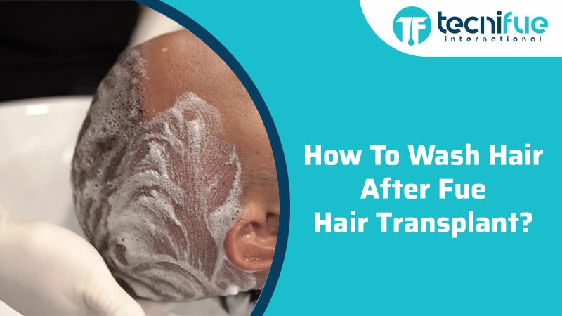 How To Wash Hair After Fue Hair Transplant?
