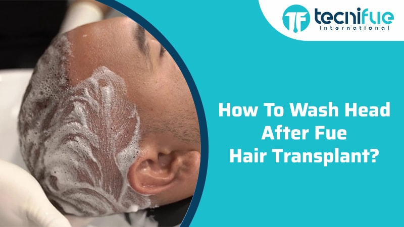 How To Wash Head After FUE Hair Transplant?