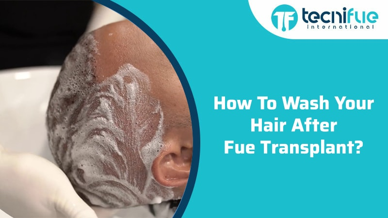How To Wash Your Hair After FUE Transplant, How To Wash Your Hair After FUE Transplant
