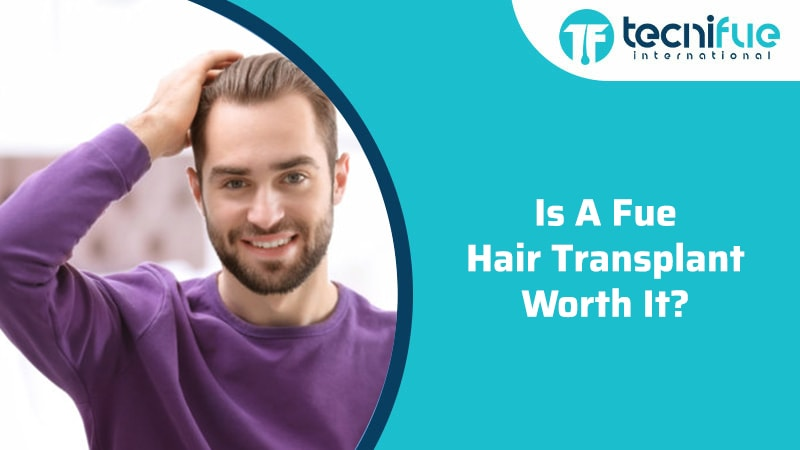 Is A FUE Hair Transplant Worth It?