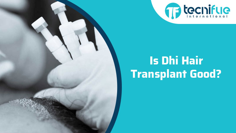 Is DHI Hair Transplant Good?, Is DHI Hair Transplant Good?