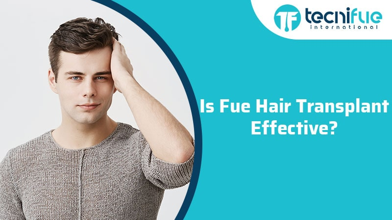 Is FUE Hair Transplant Effective?