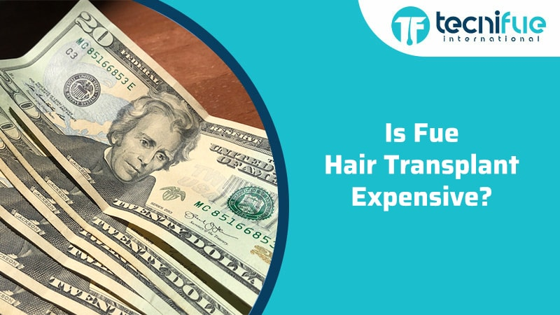 Is FUE Hair Transplant Expensive?