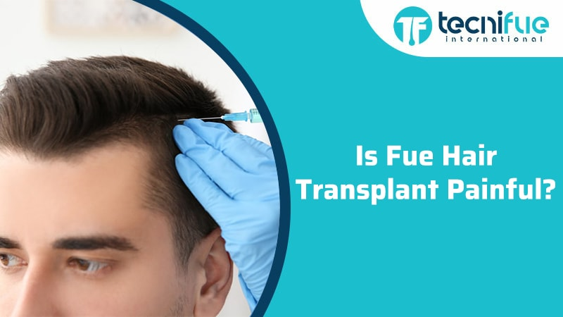 Is Fue Hair Transplant Painful?