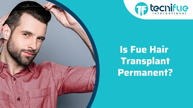 Is Fue Hair Transplant Permanent?, Is Fue Hair Transplant Permanent?