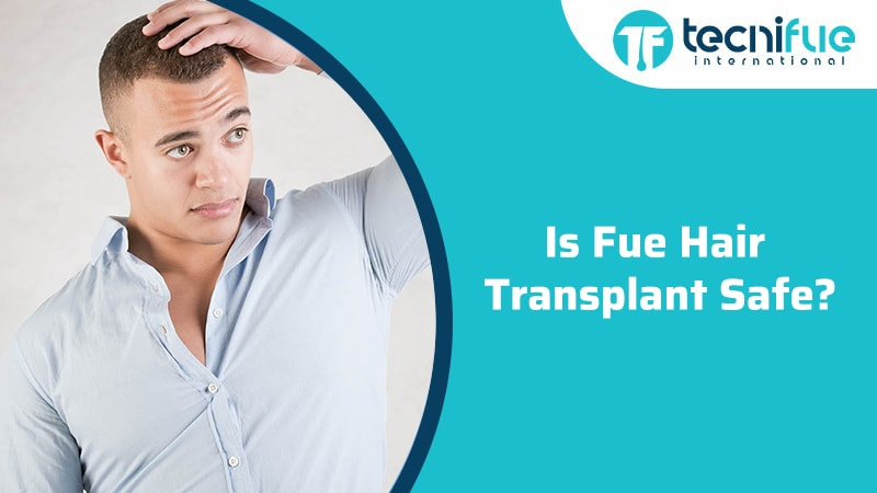 Is Fue Hair Transplant Safe?, Is Fue Hair Transplant Safe?