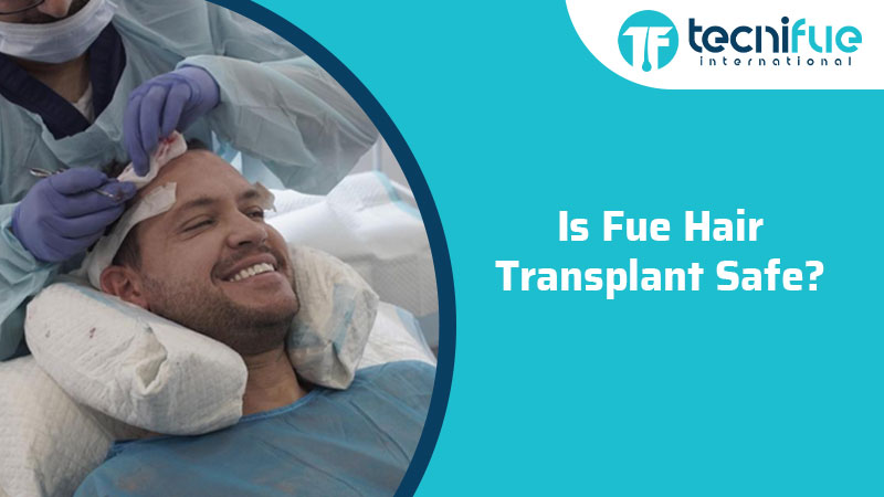 Is FUE Hair Transplant Safe?