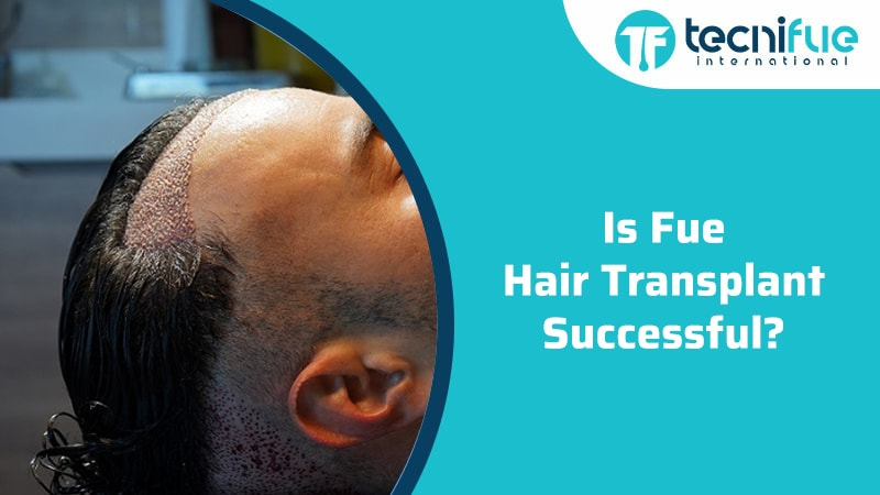 Is Fue Hair Transplant Successful?