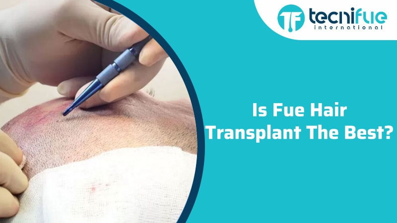Is FUE Hair Transplant the Best?