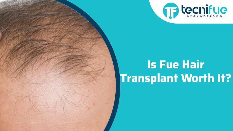 Is Fue Hair Transplant Worth It?, Is Fue Hair Transplant Worth It?